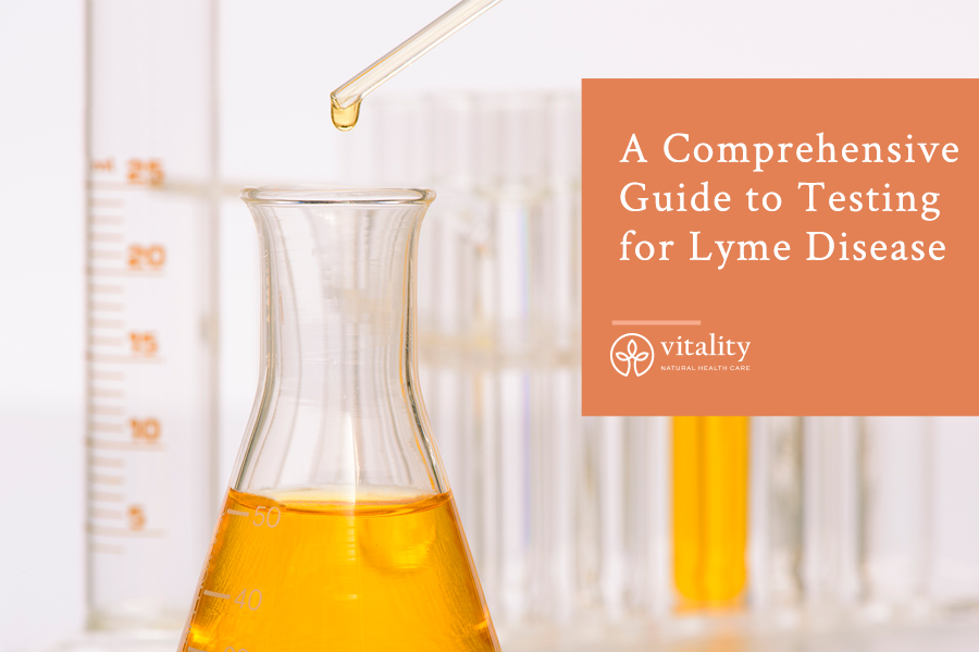 A Comprehensive Guide to Testing for Lyme Disease