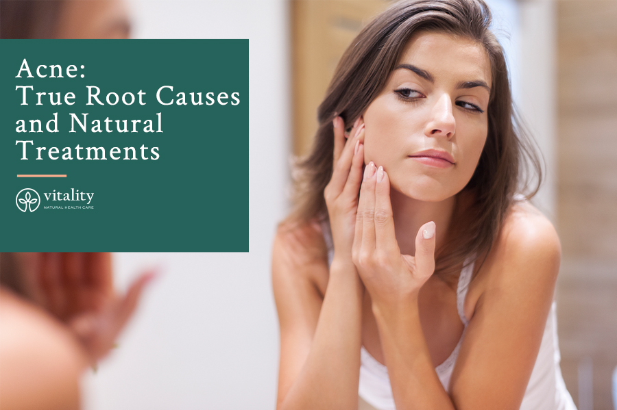 Acne: True Root Causes and Natural Treatments