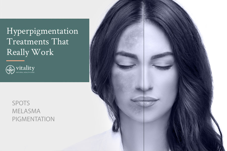 A Look At Hyperpigmentation Treatments That Really Work Image