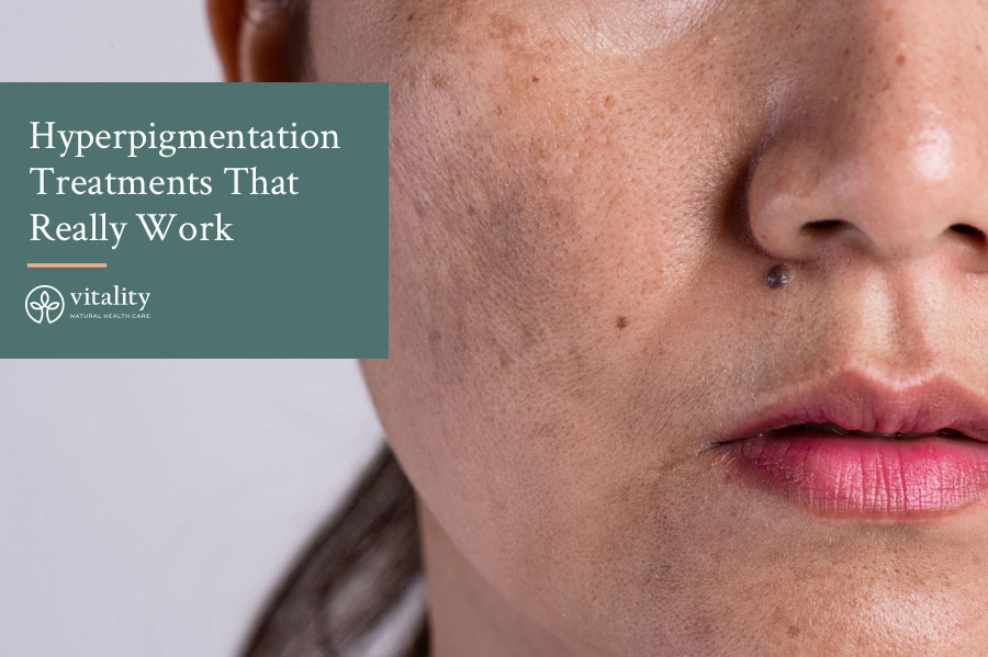 A Look at Hyperpigmentation Treatments That Really Work