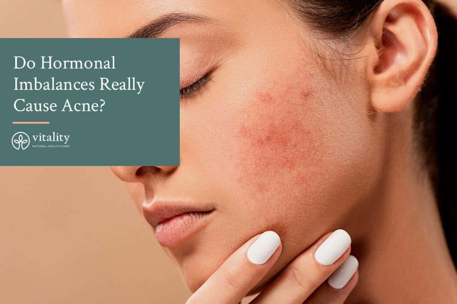 Do Hormonal Imbalances Really Cause Acne?