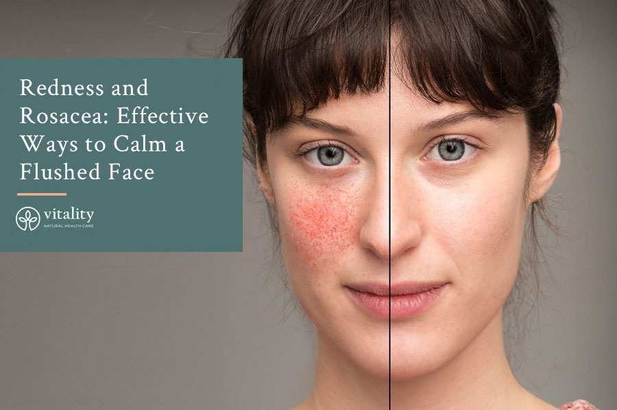 Redness And Rosacea Effective Ways To Calm A Flushed Face Img